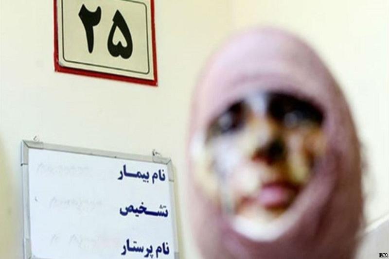 اسید پاشی - مشاوره رایگان با بهترین وکیل در مشهد